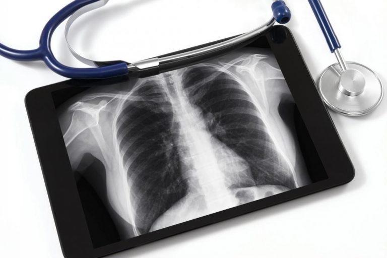 Kiểm tra sức khỏe và chụp X quang định kỳ rất nên thực hiện