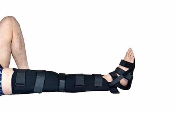 mang nẹp để điều trị đứt dây chằng chéo trước