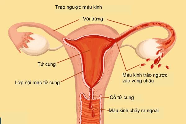 Nguyên nhân chính xác của lạc nội mạc tử cung