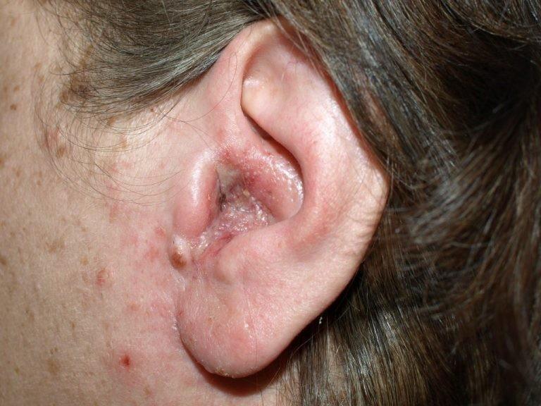 Nguyên nhân gây ra nấm tai là gì ?