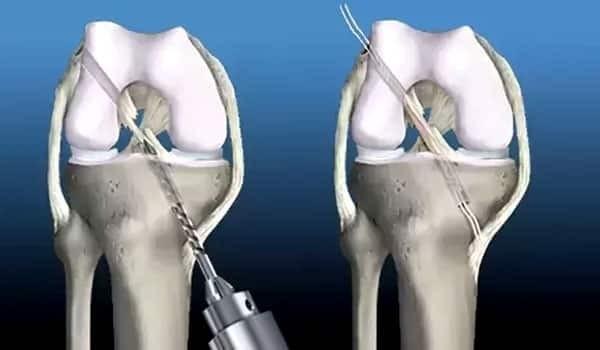 Điều trị phẫu thuật (tái tạo dây chằng chéo trước)