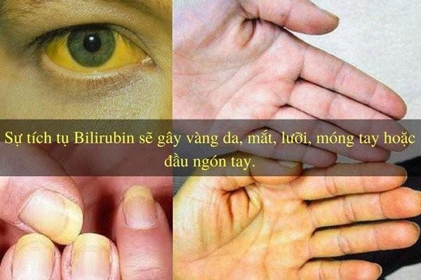 Một số triệu chứng nhận biết khi bị tắc mật