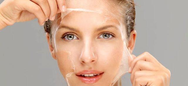 Peel da hay còn gọi là tái tạo da bằng hóa chất