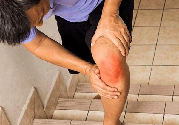 Đau khớp gối gây khó khăn khi đi cầu thang