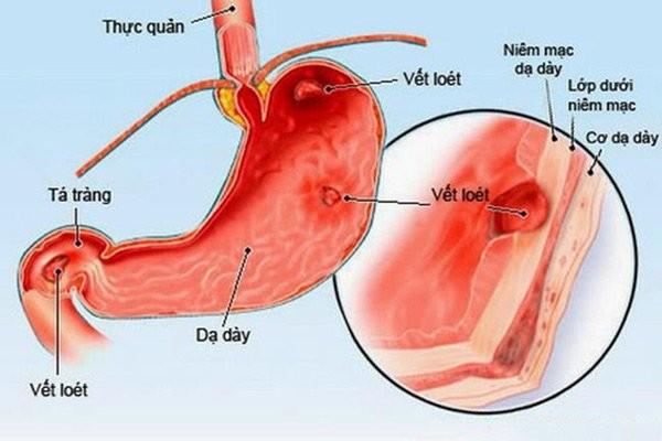Thuốc có thể dùng điều trị loét dạ dày hay tá tràng