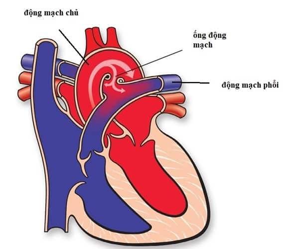 Tim bẩm sinh Còn ống động mạch là bệnh gì?