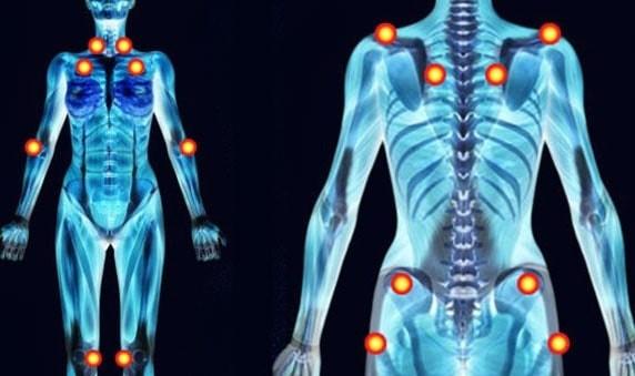Bạn nên chuẩn bị gì khi đi khám đau xơ cơ