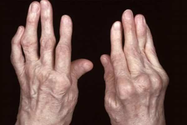 Bàn tay bị biến dạng khi bị viêm khớp dạng thấp