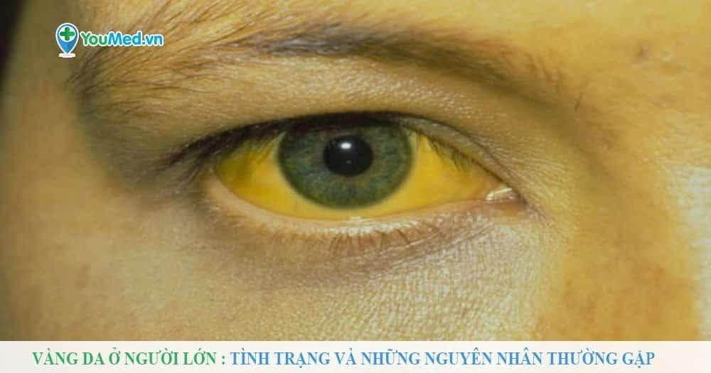 Vàng da ở người lớn - Tình trạng và những nguyên nhân thường gặp