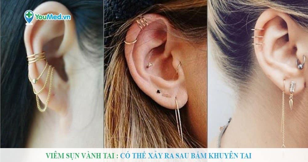 Viêm sụn vành tai : Có thể xảy ra sau bấm khuyên tai