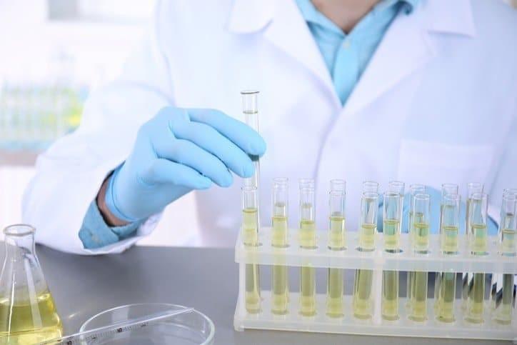 Xét nghiệm nước tiểu giúp cung cấp tình trạng nhiễm trùng
