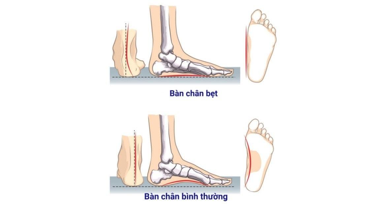 chân bẹt 1