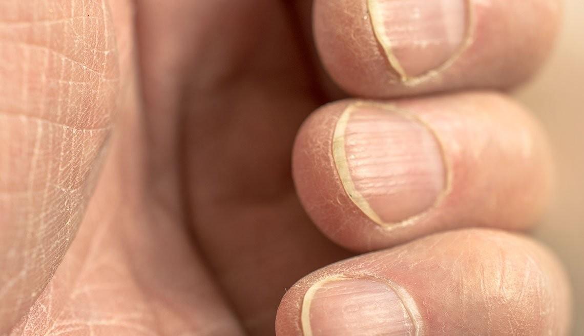 móng tay và sức khỏe 1
