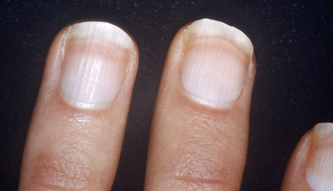 móng tay và sức khỏe 3