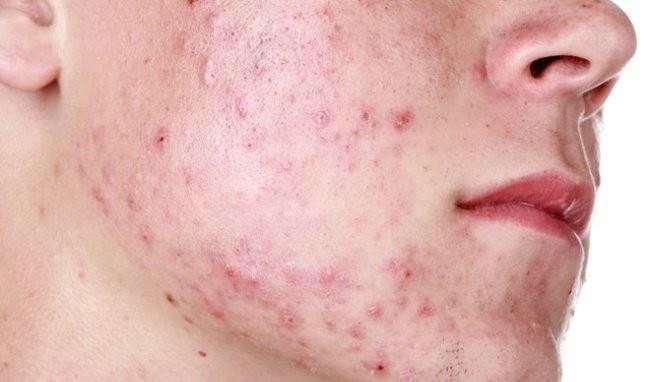 thuốc bôi da Dermovate (clobetasol)