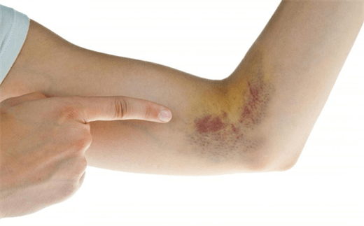 Tác dụng phụ xuất hiện các vết bầm tím