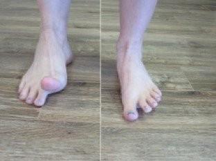 Hình ảnh minh họa bài tập nâng ngón chân cho bàn chân bẹt