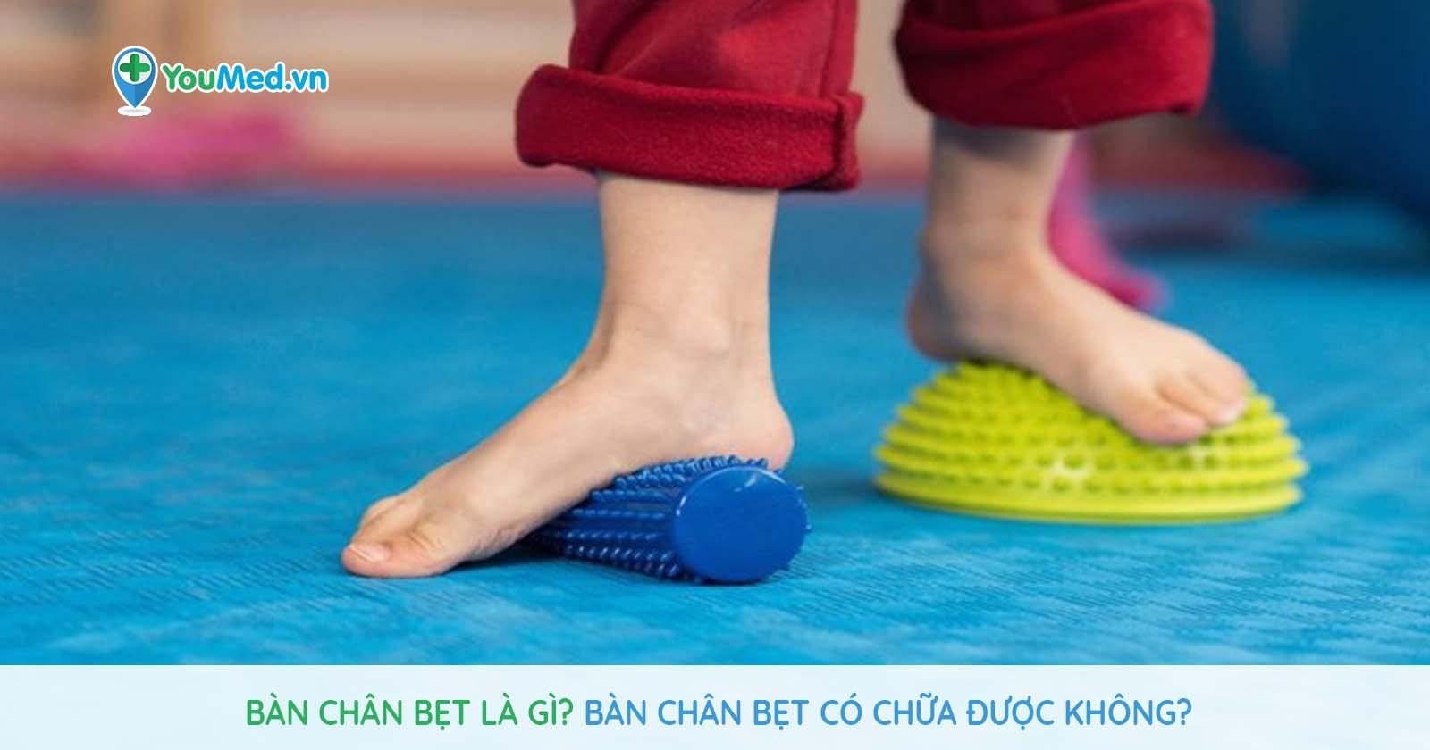 Bàn chân bẹt là gì? Bàn chân bẹt có chữa được không?