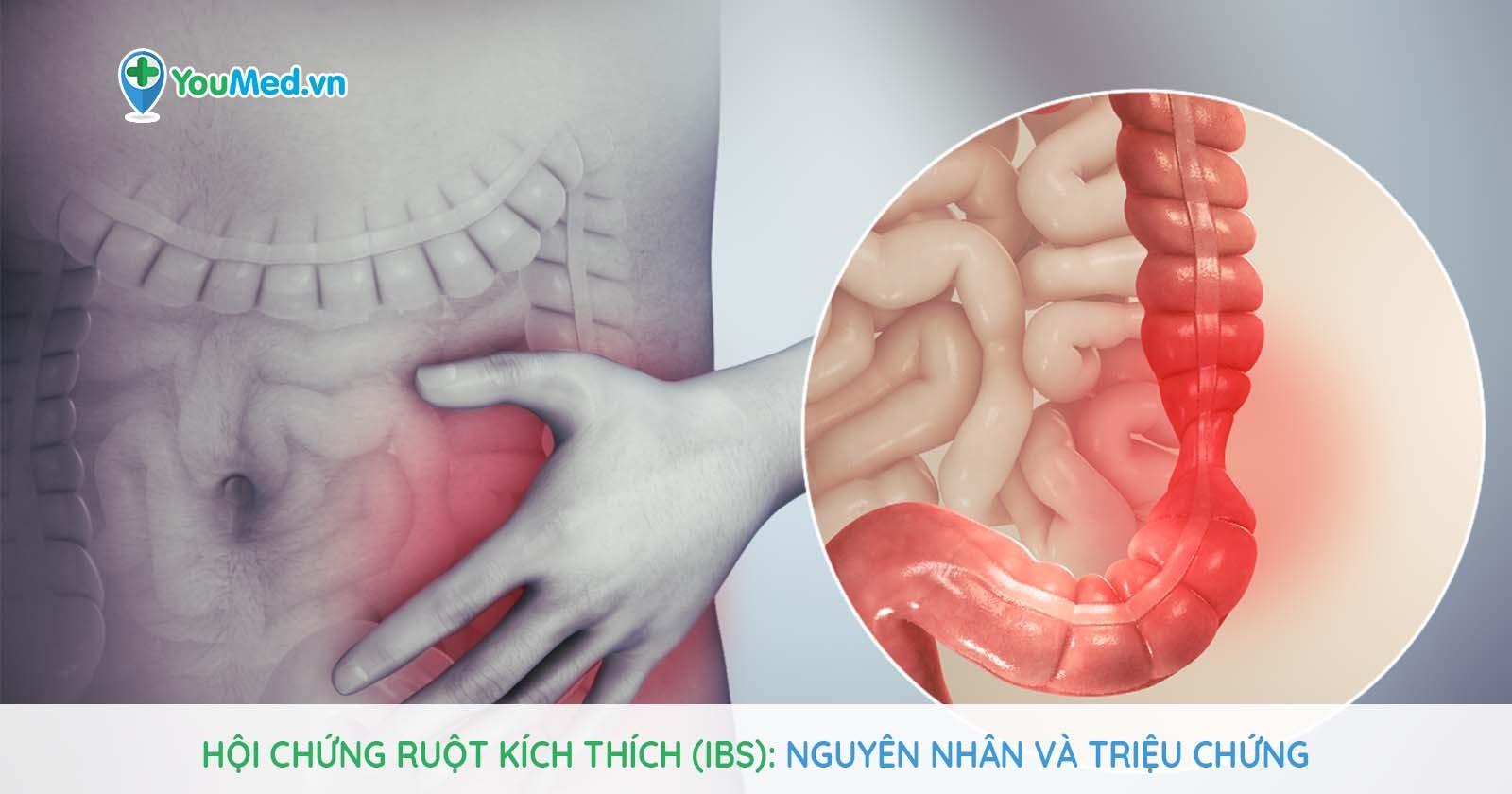 Hội chứng ruột kích thích (IBS): Nguyên nhân và triệu chứng.