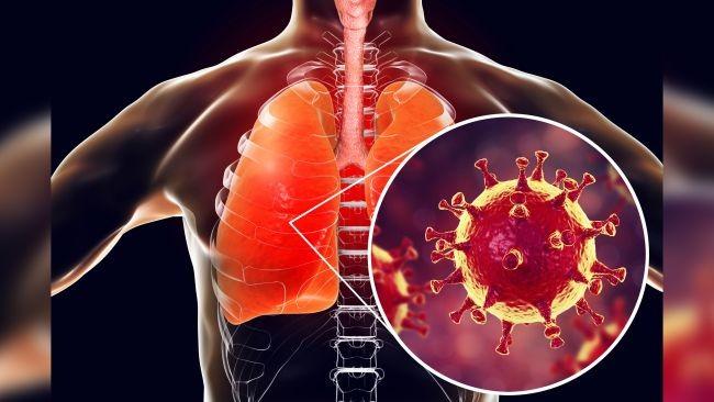 viêm phổi Corona