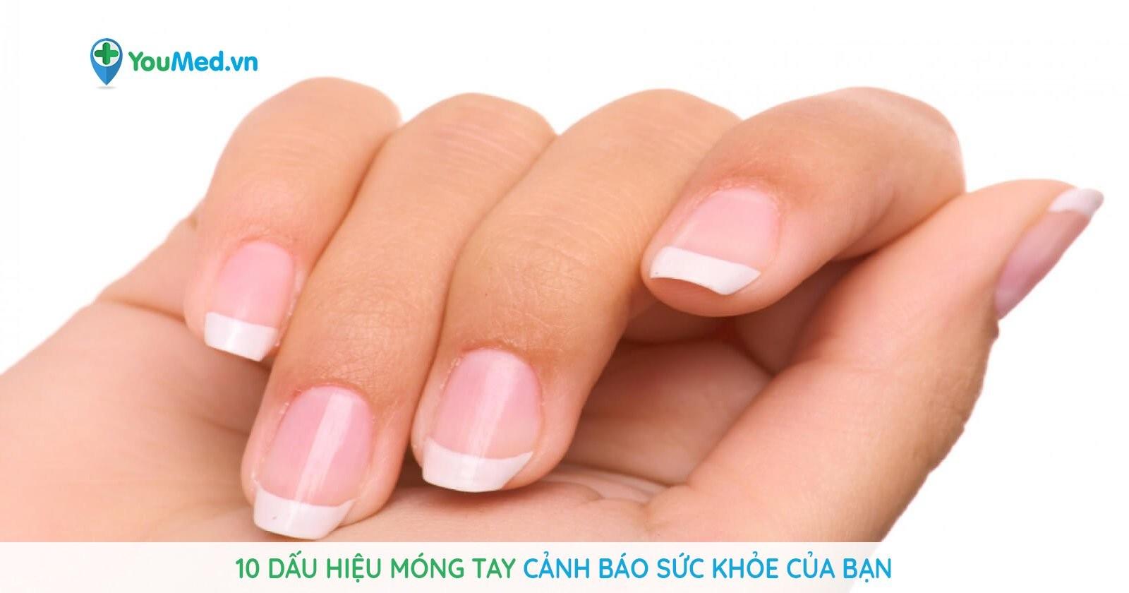 10 dấu hiệu móng tay bất thường cảnh báo sức khỏe