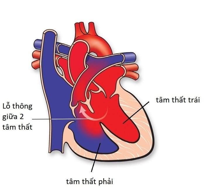 Thông liên thất là khuyết tật bẩm sinh phổ biến nhất của bệnh tim bẩm sinh