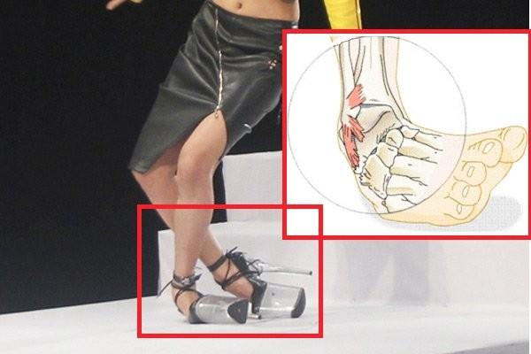 Hình minh họa cơ chế bong gân khớp cổ chân