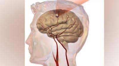 Cơn thiếu máu não thoáng qua là gì?