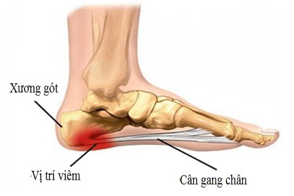 Viêm cân gan chân là nguyên nhân thường gặp nhất của đau gót chân
