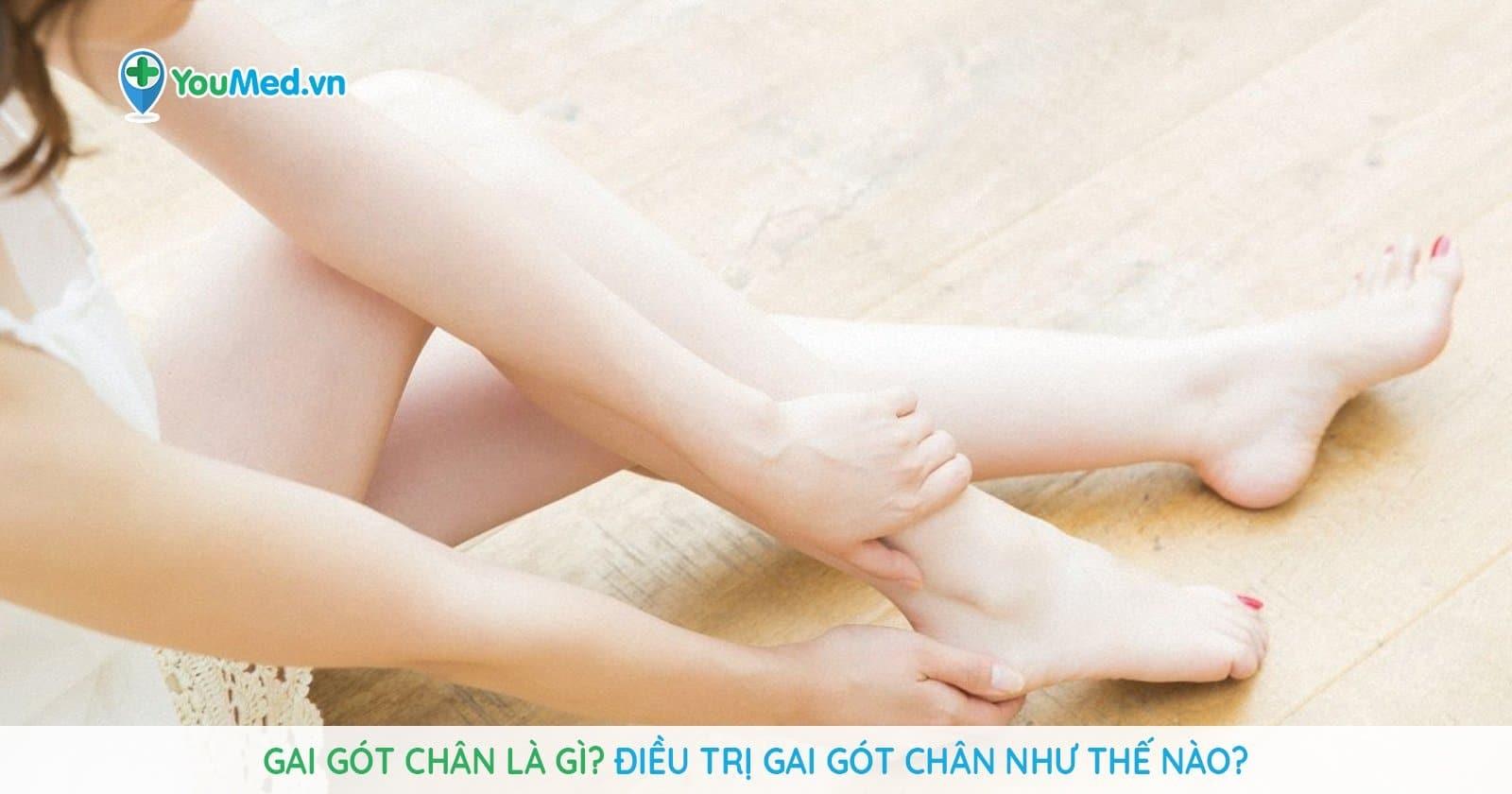 Gai gót chân là gì? Điều trị gai gót chân như thế nào?