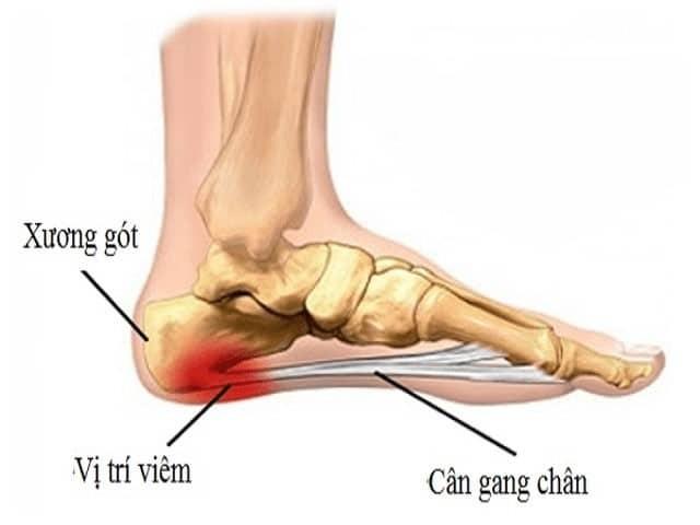 Khi bàn chân của bạn phải chịu quá nhiều áp lực, cân gan chân sẽ bị viêm