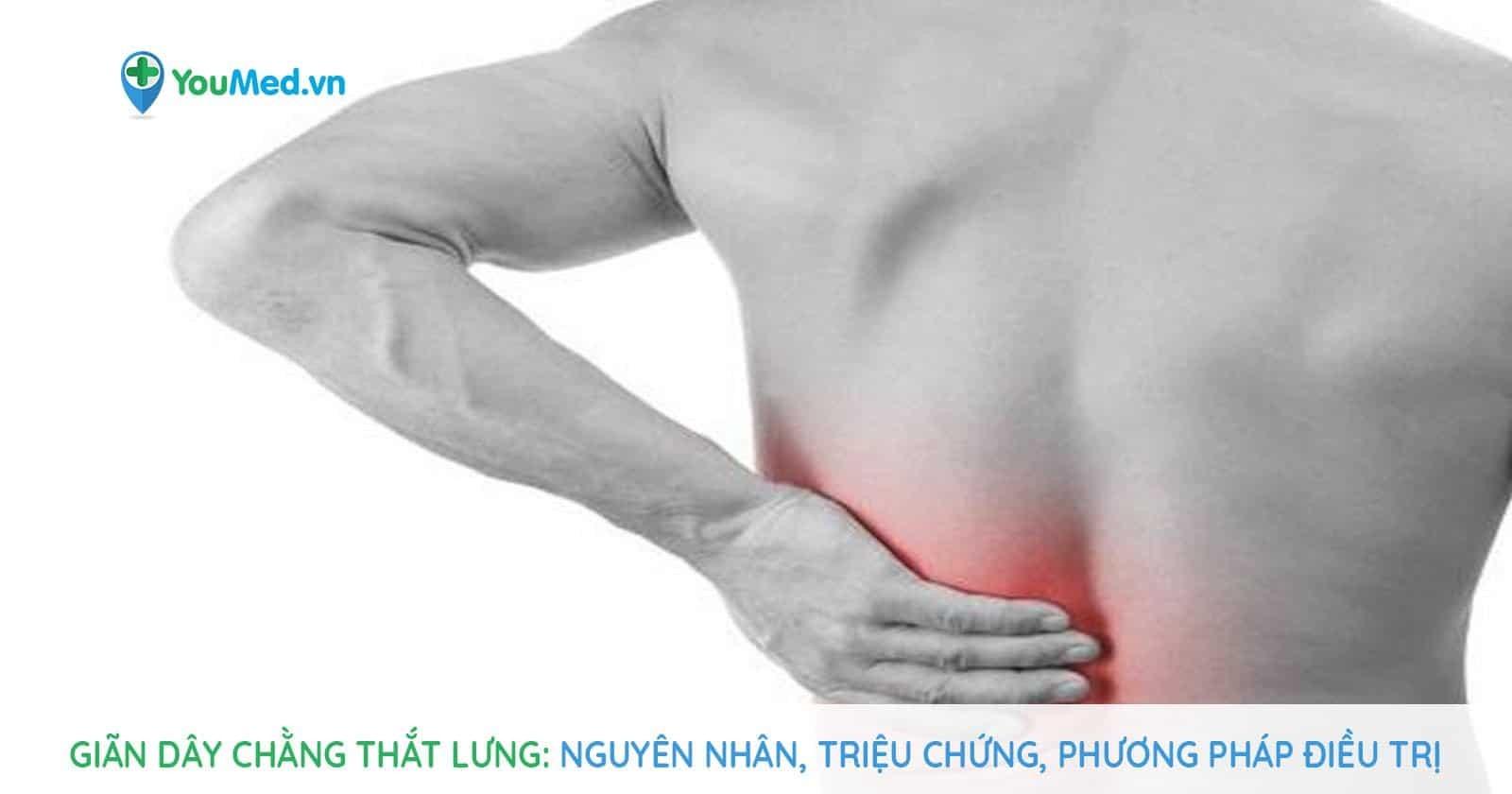 Giãn dây chằng thắt lưng: Nguyên nhân, triệu chứng, phương pháp điều trị