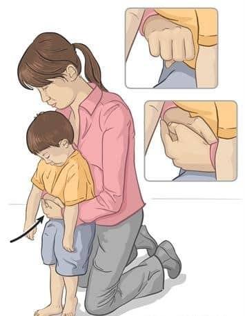 Làm gì khi phát hiện dị vật đường thở trẻ em?