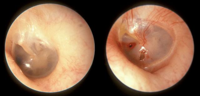 Màng nhĩ bình thường (bên trái) và màng nhĩ bị thủng (bên phải)