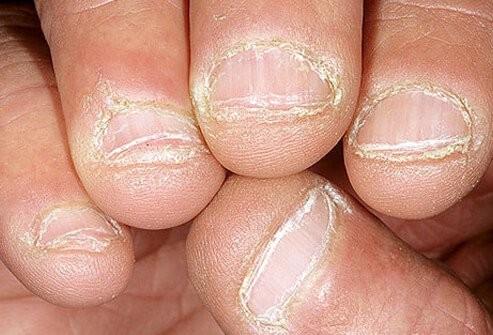 móng tay và sức khỏe 5