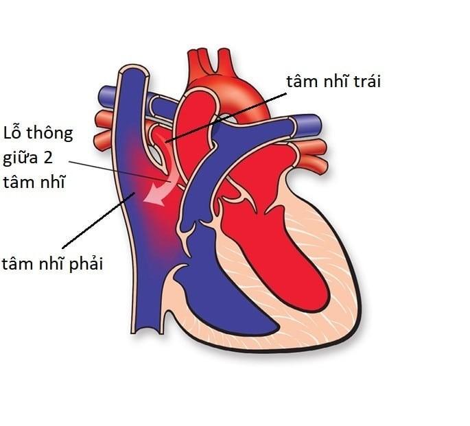 Nguyên nhân dẫn đến Bệnh tim bẩm sinh là gì ?