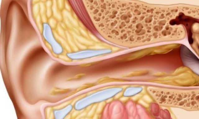 Triệu chứng nhiễm trùng tai