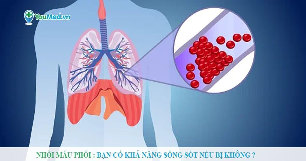 Nhồi máu phổi : Bạn có khả năng sống sót nếu bị không ?
