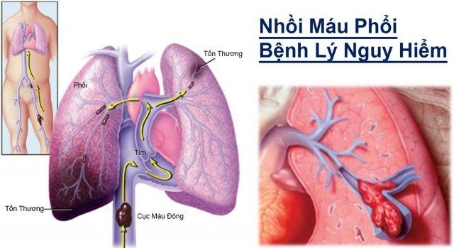 Nhồi máu phổi là gì ? Có nguy hiểm không ?