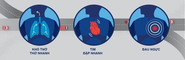 Những dấu hiệu thường gặp của nhồi máu phổi