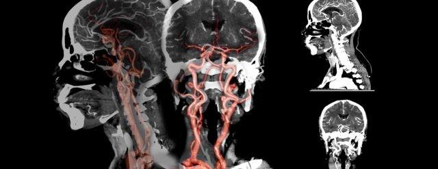 Phim chụp CT dựng hình mạch máu não