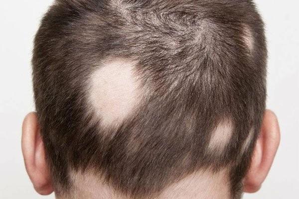 Tóc rụng nhiều có thể dẫn đến hói