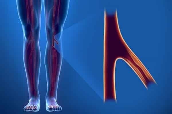 Thế nào là bệnh lý động mạch chi dưới?