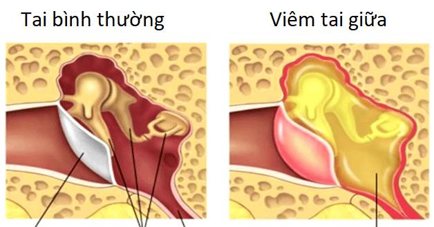 Tổng quan về viêm tai giữa