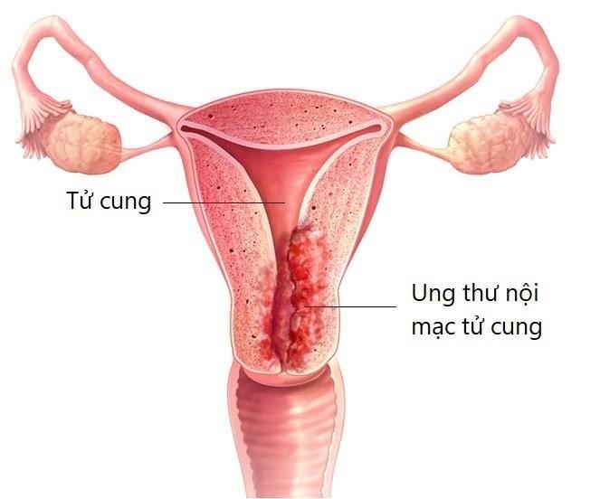 Ung thư nội mạc tử cung là ung thư của lớp tế bào lót