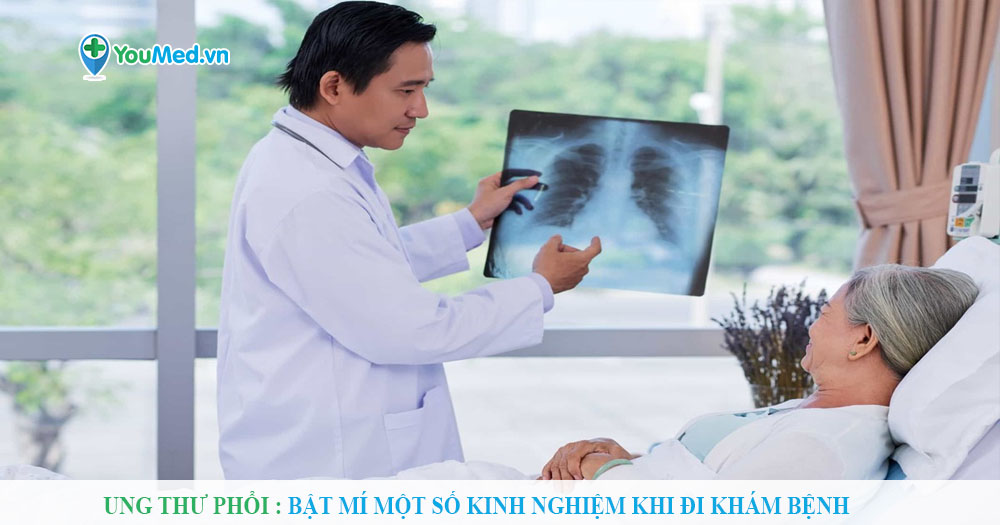 Ung thư phổi: Bật mí một số kinh nghiệm khi đi khám bệnh