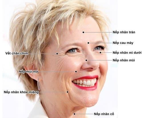 Vị trí nào hay tiêm Botox