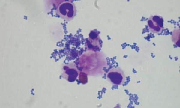 Nấm Malasseria