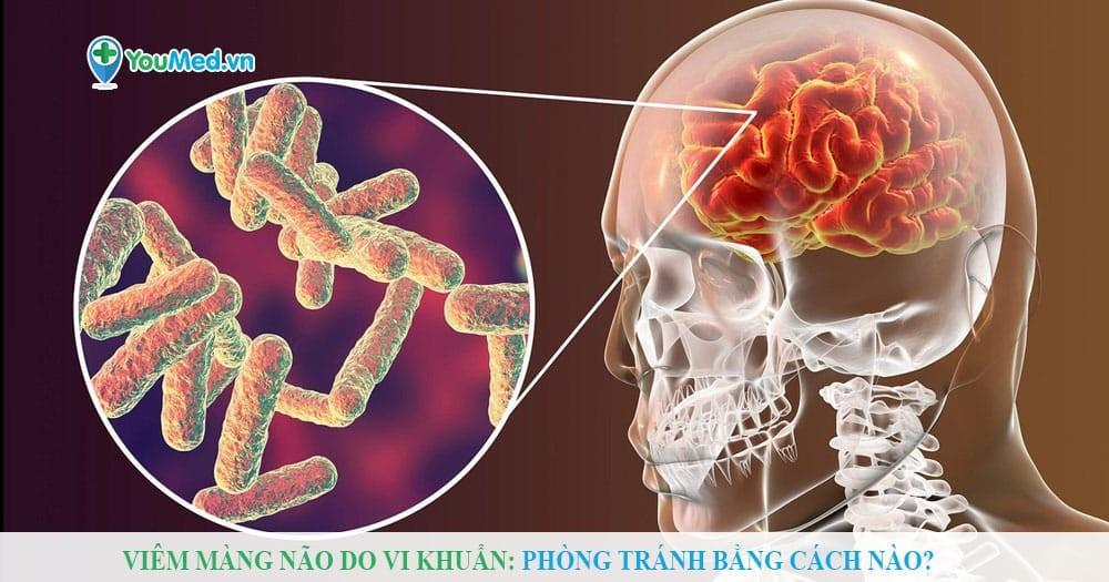 Viêm màng não do vi khuẩn: Phòng tránh bằng cách nào?