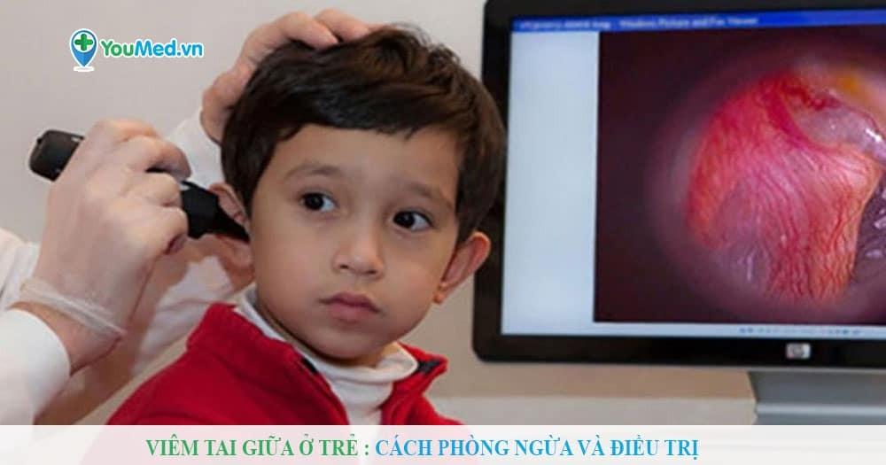 Viêm tai giữa ở trẻ : Cách phòng ngừa và điều trị